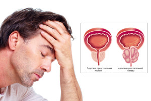 Аденома предстательной железы и простатит, как отличить  и как лечить.