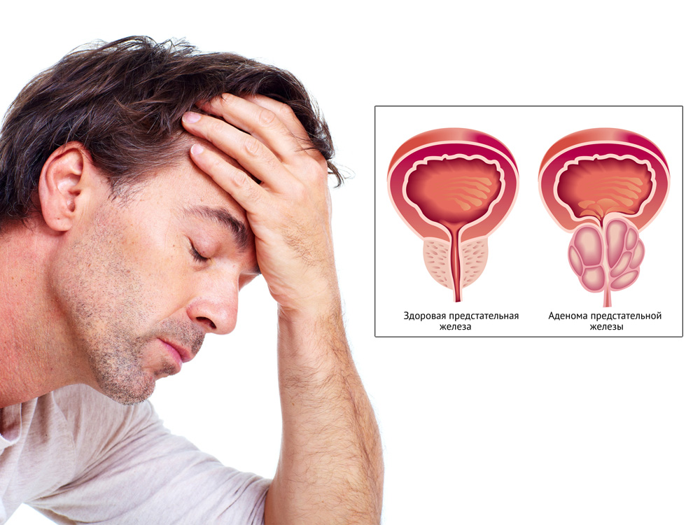 Аденомы предстательной железы питание