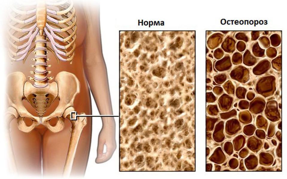 http://potomuchto.net/wp-content/uploads/2016/05/2.-Osobennosti-osteoporoza-960x600_c.jpg